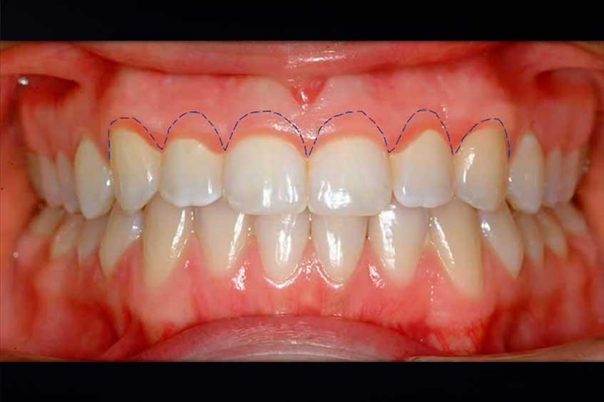 genigivectomia-estetica-de-la-sonrisa-2