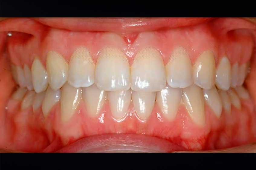genigivectomia-estetica-de-la-sonrisa