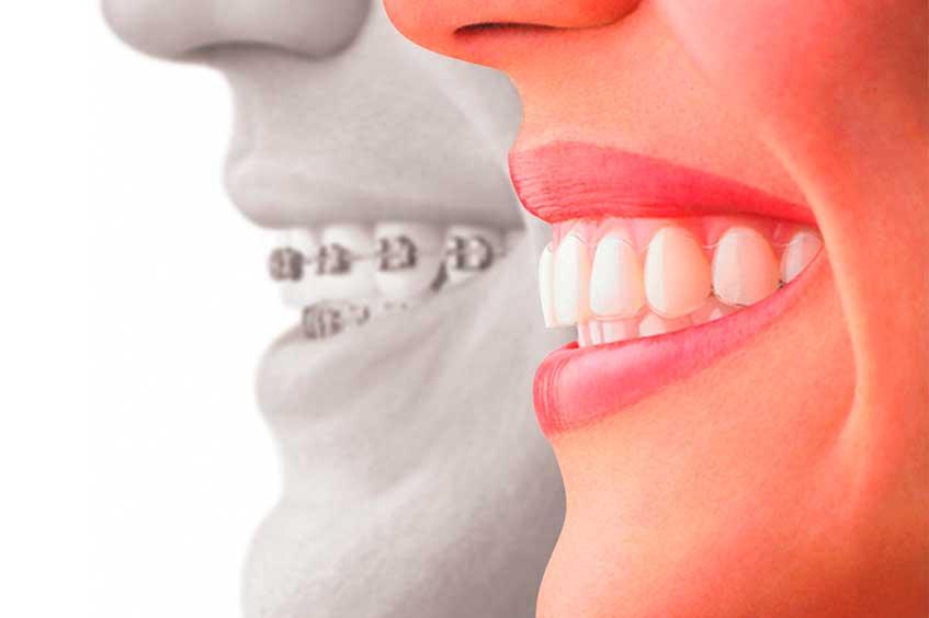 ortodoncia-brackets-ortodoncia-invisible-en-oviedo