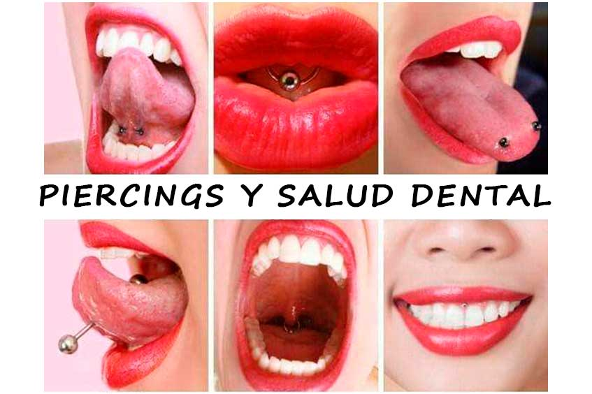 piercings-y-salud-dental
