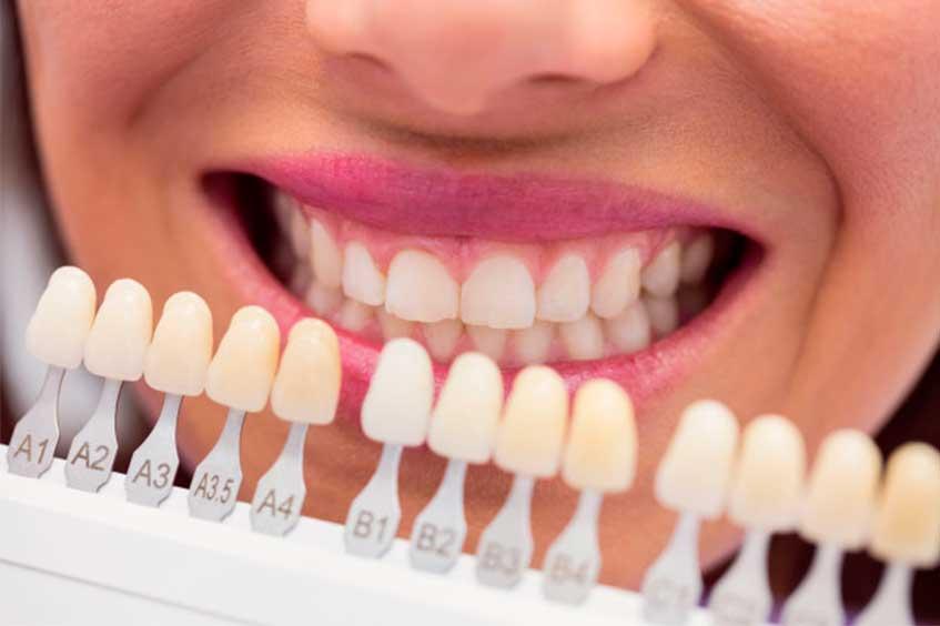 carillas-dentales-en-oviedo-dentista