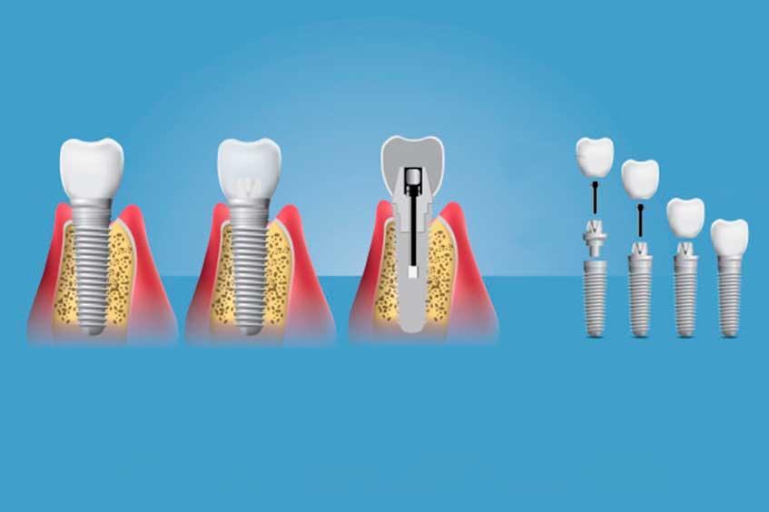 implantes-dentales-en-oviedo-dentista-especializado