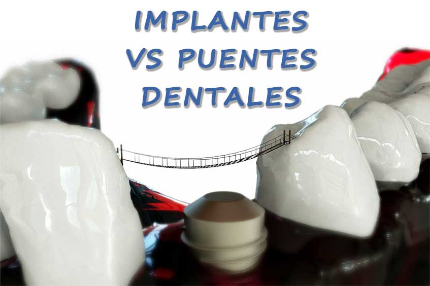 implantes-vs-puentes-dentales-oviedo-dentista
