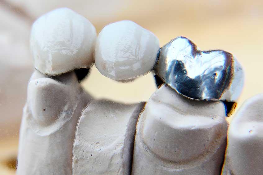 puentes-dentales-mejor-dentista-en-protesis-dental-oviedo