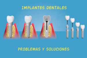 Implantes dentales: problemas y soluciones.