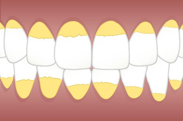 Sarro en los dientes