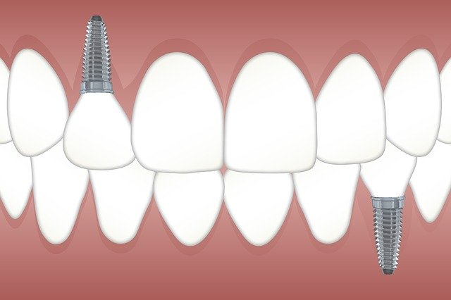Dibujo de implantes dentales