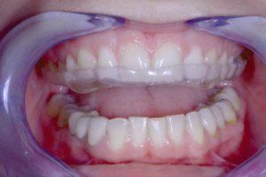 Dentadura con férula de descarga