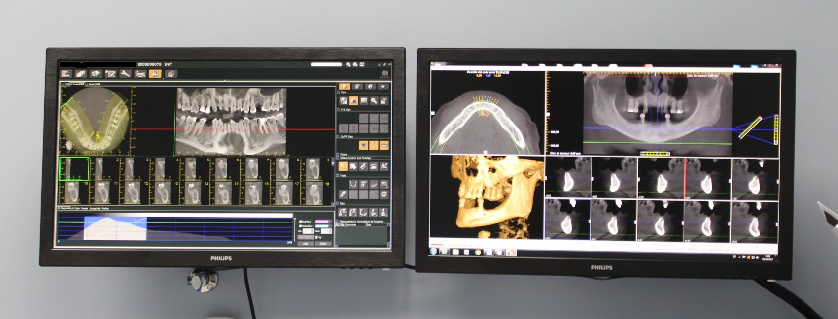 Escaner 3D para implantes dentales