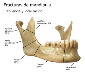 Fracturas de mandíbula