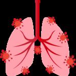 Pulmones con neumonía
