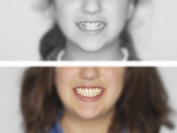 ortodoncia-niños-1