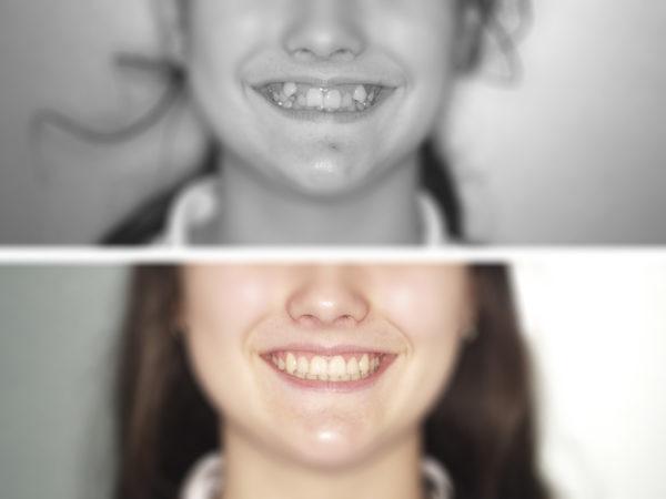 ortodoncia-niños-3