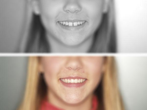 ortodoncia-niños-4