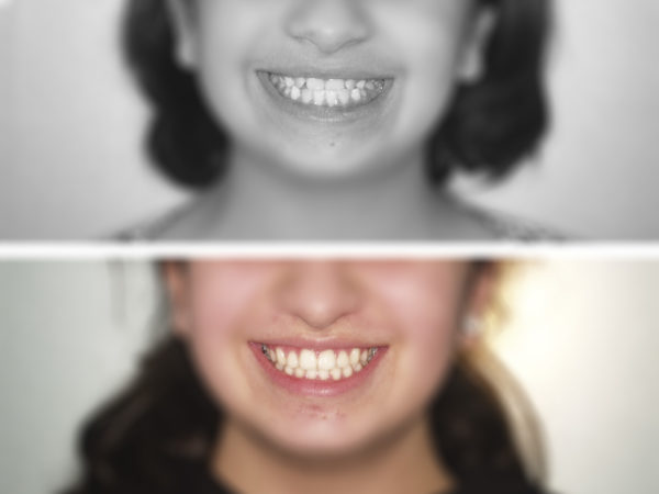 ortodoncia-niños-5